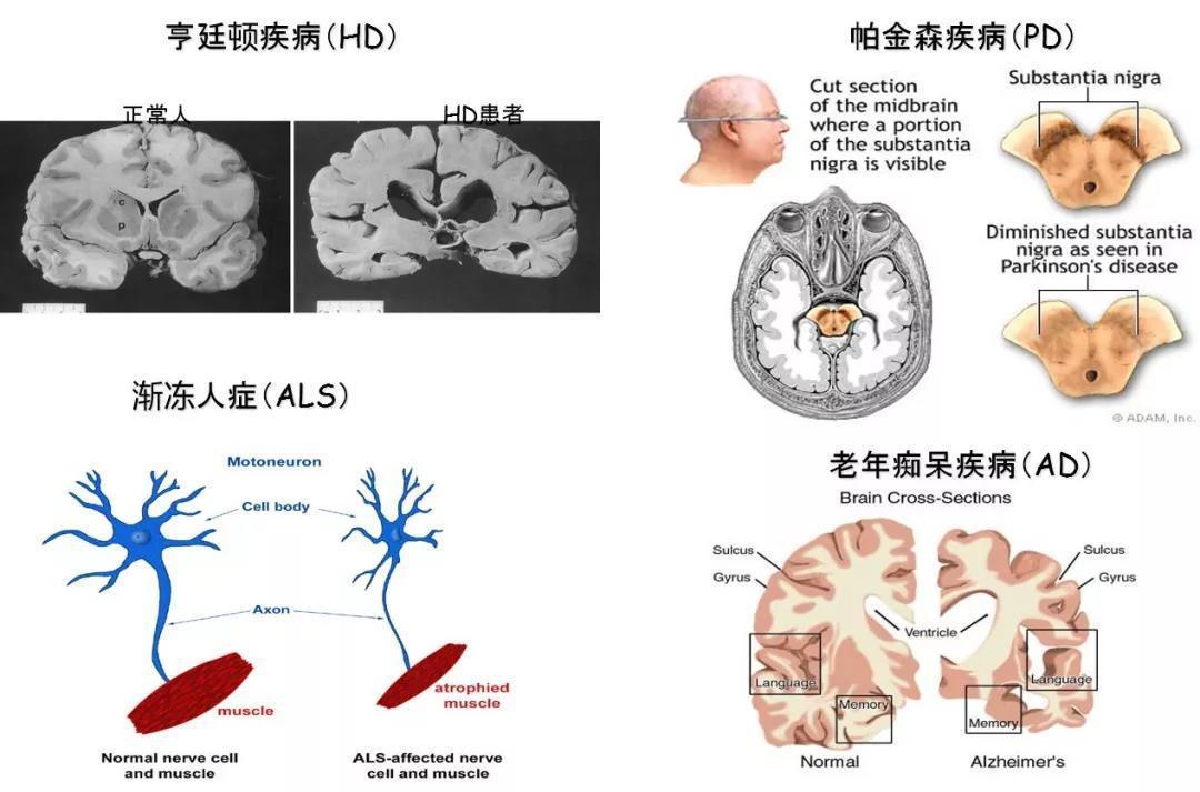 与衰老相关的神经退行性疾病