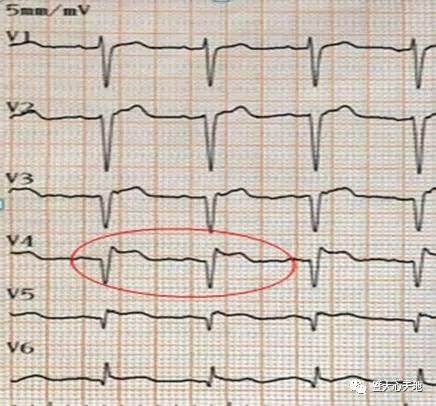 心电图急性心肌梗死图形