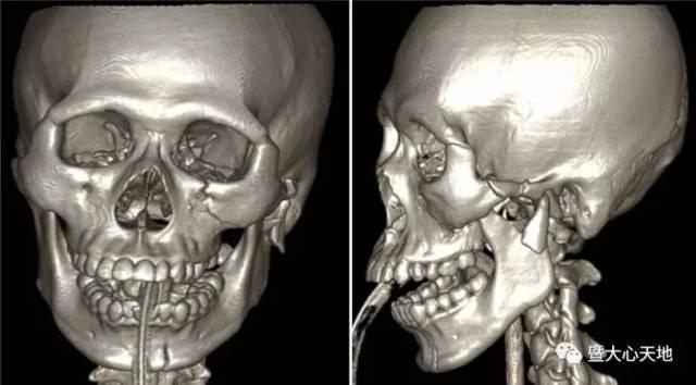 术前严重的面部骨折