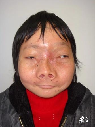 手术8个月后复诊,她基本恢复了正常人的容貌