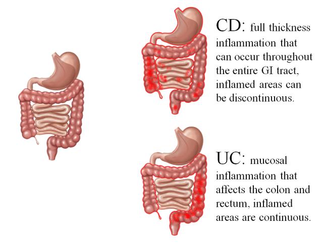 克罗恩病和溃疡性结肠炎发病器官和组织的分布差异。