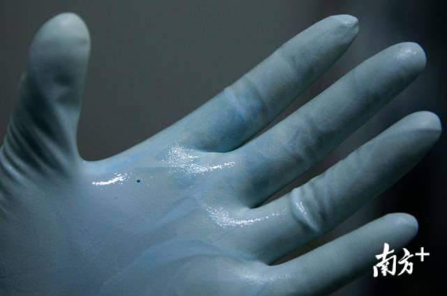 2月24日,在岗位上刘家怡发现手套破了一个小口,这种情况存在感染的风险。