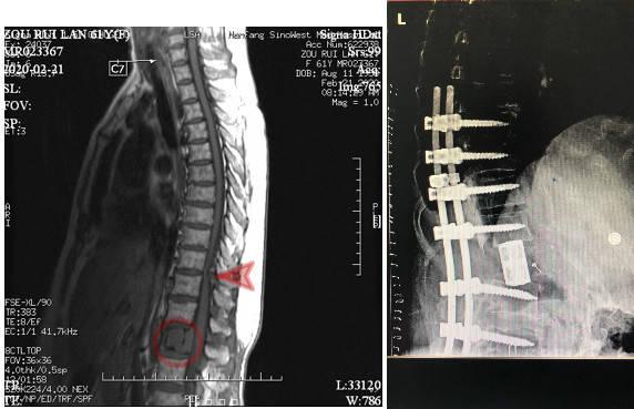 图左:术前MR示腰椎肿瘤(圆圈处)、胸椎狭窄(箭头所指)。图右:术后X光,病变脊椎切除,代以人工椎体。